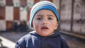 e60746dc58 La strage silenziosa della fame in Yemen, in 3 anni morti 85 mila ...